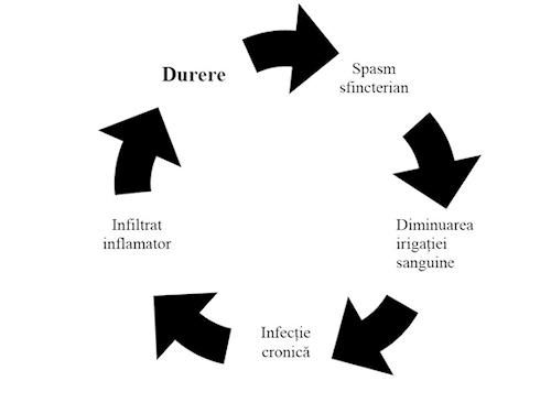 Cercul vicios al fisurii anale